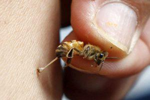 زهر زنبور عسل و مصارف دارویی آن ویدیو درمان ایدز